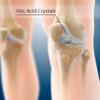 Uric acid crystals in the joints cause gouty arthritis.