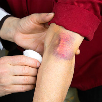 A doctor examines a large hematoma on a patient's arm.