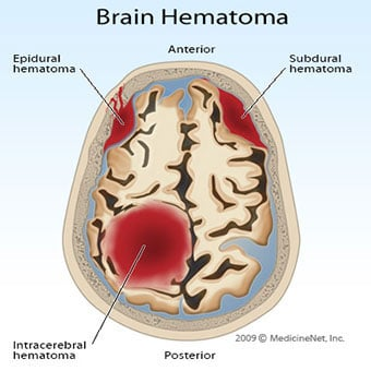 An illustration of subdural and epidural hematomas in the brain.