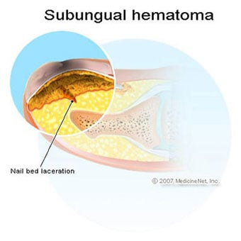 An illustration of a subungual hematoma of the fingernail.