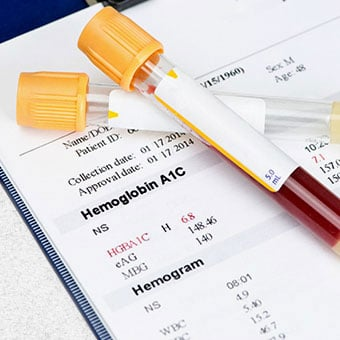 Vials on top of a hemoglobin A1c test report.