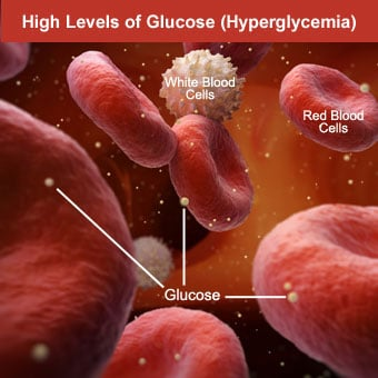 High Blood Glucose Definition, Symptoms, Causes, and Treatment
