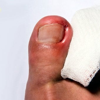 Ingrown Toenail Removal,Treatment, Home Remedies & Infection