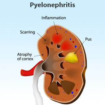 Illustration of pyelonephritis.