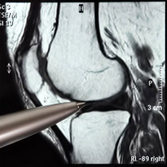 A medical image of where the knee bursae are located around the knee joint.