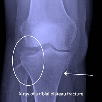 X-ray of a tibial plateau fracture.