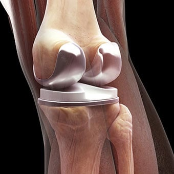 Total knee replacements require surgery to implant artificial knee joints.