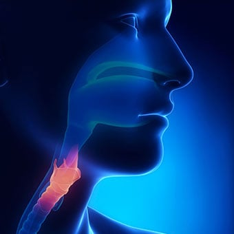 An X-ray illustration an inflamed larynx.