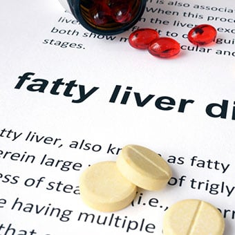 Heavy drinking, hepatitis, and medications can all cause abnormal liver test results.