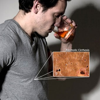 A man drinking alcohol with a callout showing alcoholic cirrhosis, a potential outcome of alcohol abuse.