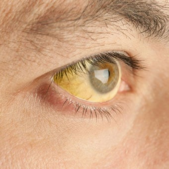 A person with yellow discoloration of the eye and skin signifying jaundice.
