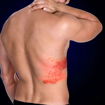 A male experiences back pain due to the shingles rash.