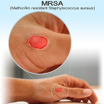 An illustration shows a lesion caused by a methicillin-resistant Staphylococcus aureus (MRSA) bacterial infection.
