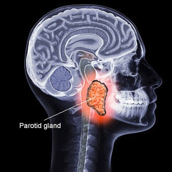 The illustration shows where the parotid gland is located.