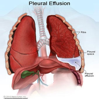 Illustration of pleurisy showing inflammation of the lung lining and accumulation of extra fluid.