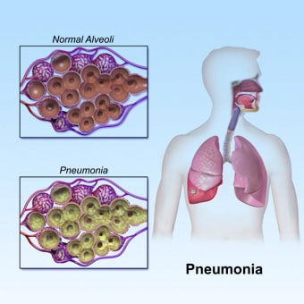 Community-acquired pneumonia (CAP) is most common in winter months.