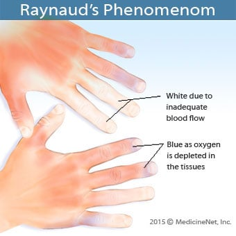 An illustration describes Raynaud's phenomenon.