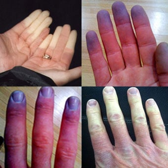 Photos of Raynaud's phenomenon show various characteristics of pale discoloration of the fingers due inadequate blood flow as well as blue discoloration as a result of oxygen depletion in the tissues.