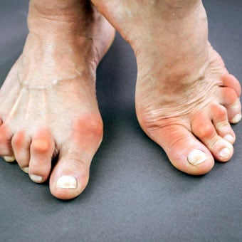 Red, inflamed toe joints may indicate rheumatoid arthritis.