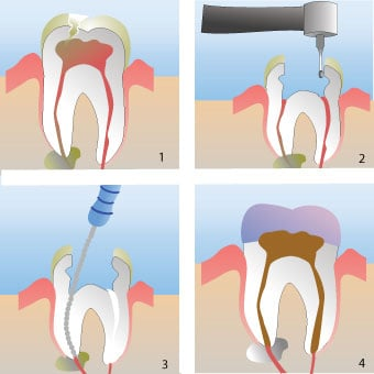 Illustration of a dental root canal procedure on a tooth.
