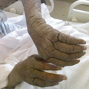 Crusted Norwegian scabies lesions can be seen on the ear of a patient.