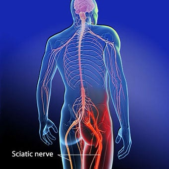An illustration shows the location of the sciatic nerve.