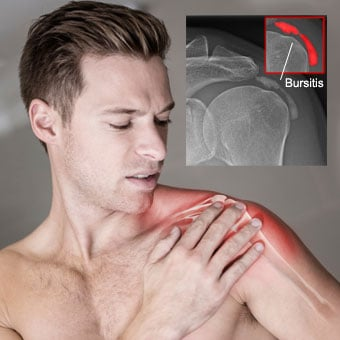 A man suffers shoulder pain due to bursitis.