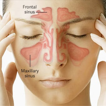 Sinus cavities provide air filtration and contribute to the strength of the skull.