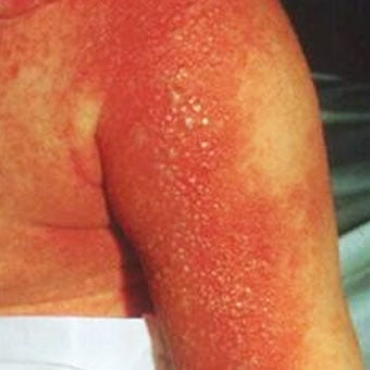 Staph (Staphylococcus) Infection Symptoms, Causes, Pictures