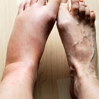 swollen ankles & feet causes (pregnancy, disease) & remedies, Skeleton