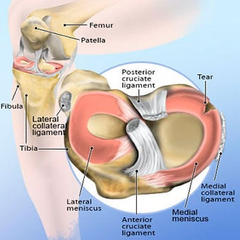 Torn Meniscus Symptoms, Treatment, MRI Test & Recovery Time
