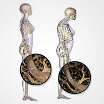 An illustration depicts normal standing posture and osteoporosis.