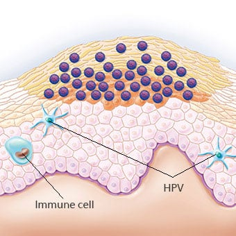 Illustration of a genital wart. The human papillomavirus (HPV) is visible near the wart and which is responsible for the wart. The blue cells represent the immune cells.