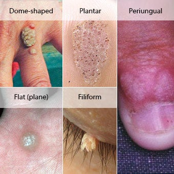 papilloma how to remove)