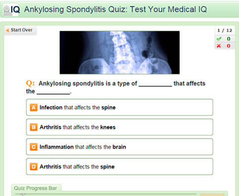 Ankylosing Spondylitis Quiz: Test Your Medical IQ