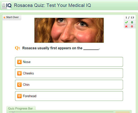 Rosacea Quiz: Test Your Medical IQ