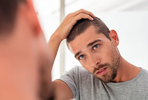Hair loss is one of the common problems in men