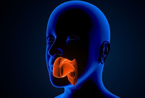 Adenoid cystic carcinoma typically affects the salivary glands.