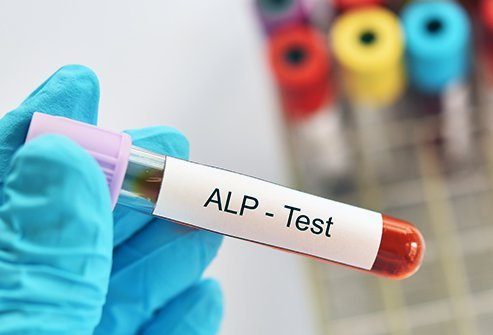 Doctors order ALP tests when you show signs or symptoms of liver or bone disease.