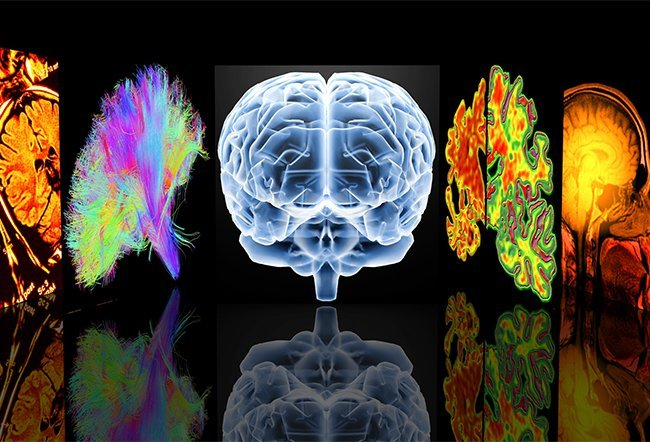 multiple sclerosis (MS) diagnosis