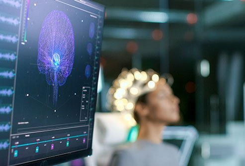 A video EEG (electroencephalograph) monitoring is a diagnostic procedure using EEG and video recordings simultaneously in order to monitor seizure activity. A video EEG monitoring is usually performed in a hospital. The duration of the video EEG monitoring depends on the frequency of the seizures.