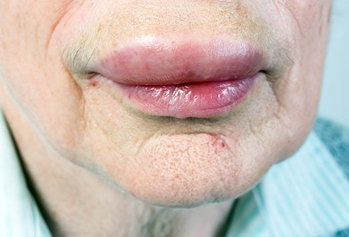 Angioedema is treated by your doctor according to the cause of your angioedema, which includes medications and home care.