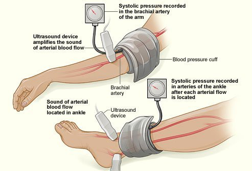 Ankle brachial index is a way of checking blood pressure to diagnose peripheral artery disease (PAD).