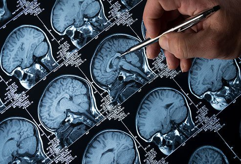 Antiepileptic drugs aim to rebalance the chemo-electric activity in the brain, the dysfunction of which causes seizures.