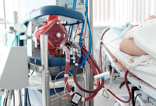 Extracorporeal membrane oxygenation (ECMO) is lifesaving support