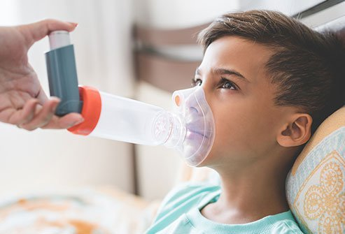 Asthma is a chronic inflammatory lung disease caused due to the airway's hypersensitive response to allergic stimuli. Severe asthma or status asthmaticus is defined as asthma that is uncontrolled, despite adherence with maximal optimized therapy and treatment of contributory factors or asthma that worsens when high dose treatment is decreased.