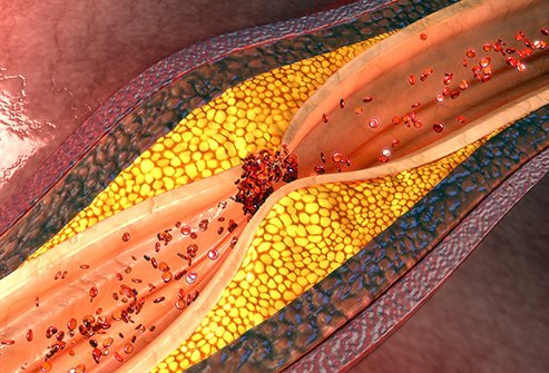 Atherosclerosis causes plaque to clog and narrow your arteries over time.