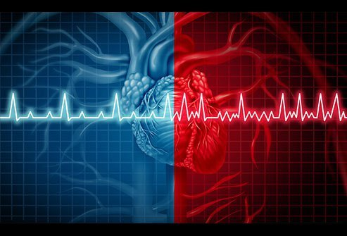 Atrial fibrillation (AFib) is an abnormal heart rhythm (arrhythmia) that usually causes a very fast heart rate.