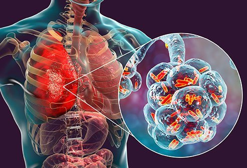 Viral pneumonia causes a dry cough, fever and other symptoms.