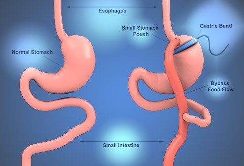 What Is the Safest Form of Bariatric Surgery?
